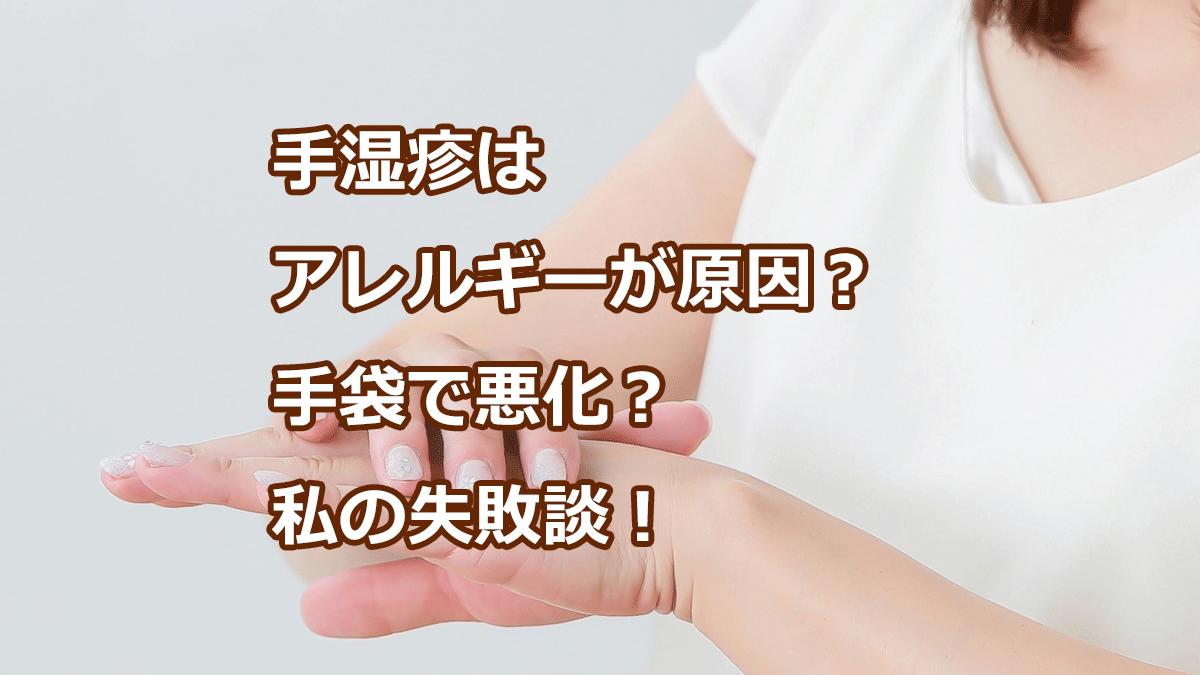 手湿疹はアレルギーが原因?手袋で悪化?私の失敗談!
