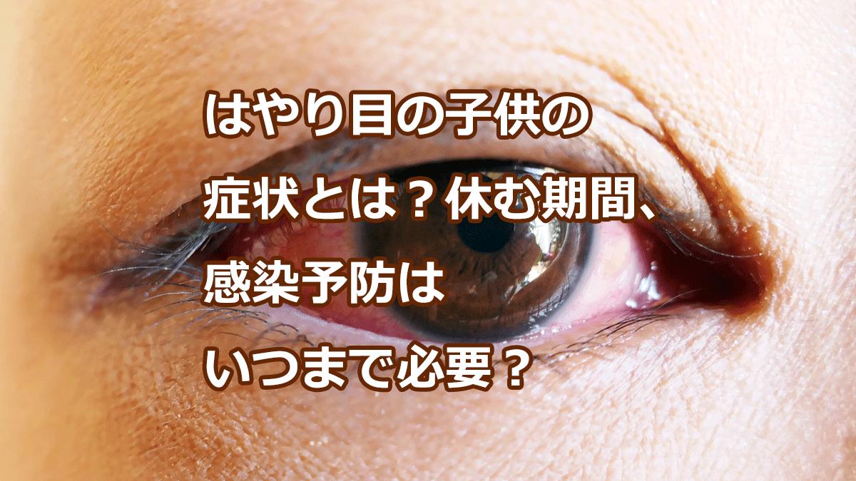 はやり目の子供の 症状とは?休む期間、 感染予防は いつまで必要?